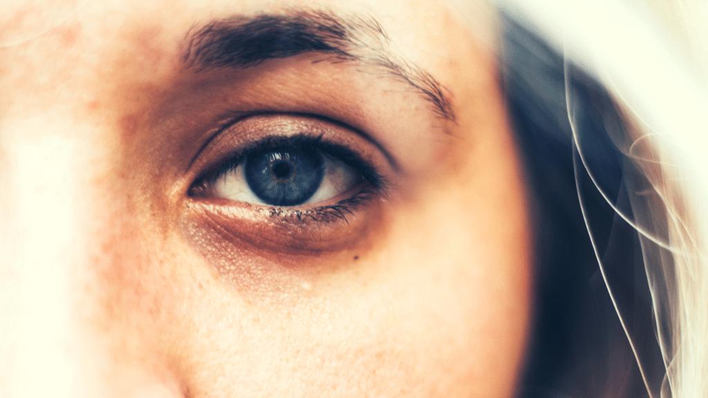डार्क सर्कल और आँखों की सूजन के लिए ग्रीन टी
